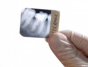 Снимок зуба дешево