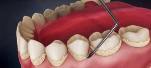 Услуги по удалению зубного камня в Вологде
