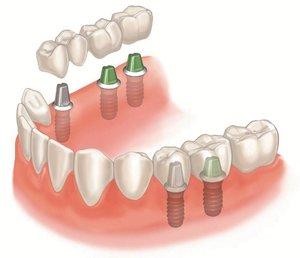 Протезирование зубов в Ростове