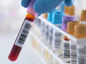 Сдать анализ на гепатит