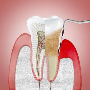 Удаление нерва зуба в Вологде