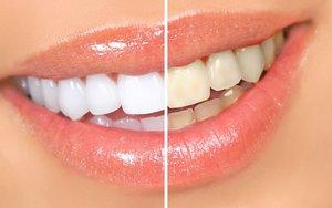 Отбеливание зубов в Вологде