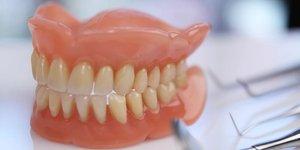 Установка протезов зубов в Вологде