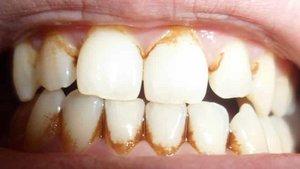 Зубной камень: причины возникновения и последствия