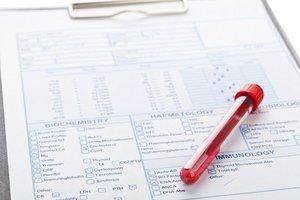 Проверьте щитовидную железу. Сдайте анализ ТТГ!