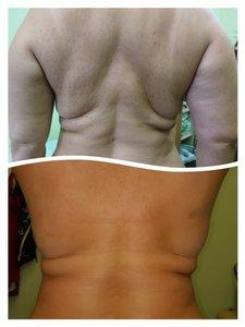 Препарат FAT APOPTOSIS BODY- новый взгляд на способы борьбы с жировыми отложениями.