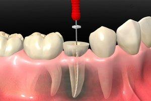 Лечение канала зуба.