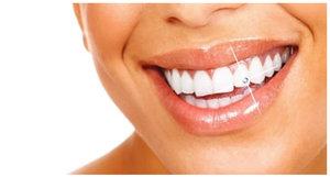 Украшение зубов скайсами в Череповце