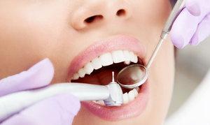 Удаление нерва зуба в Оренбурге