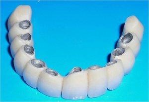 Установка металлокерамической коронки на зуб