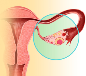 Определение проходимости маточных труб методом ультразвуковой диагностики. УЗИ маточных труб