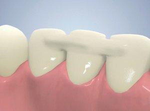 Шинирование зубов в Вологде