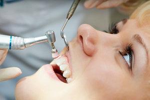 Комплексная профессиональная гигиена полости рта в Череповце