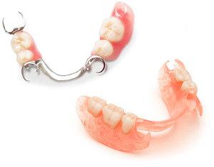 Съемные зубные протезы при частичном отсутствии зубов: какие лучше?