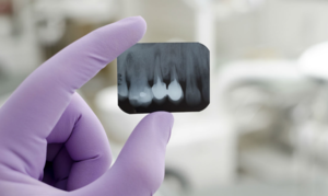 Сделаем рентген зуба быстро!