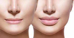 Увеличение губ в Вологде