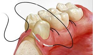 Швы после удаления зуба