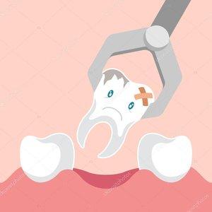 Многие боятся удаления зуба, а как же осложнения после удаления!?
