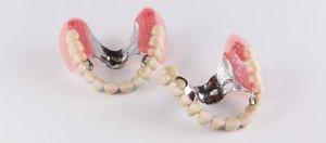 Изготовление бюгельных зубных протезов в Вологде