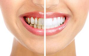 Удаление зубного камня. Обращайтесь к специалистам!