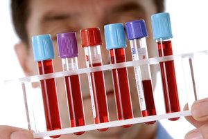 Проверить кровь на сахар в Вологде