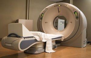 МРТ-диагностика при эпилепсии в Вологде