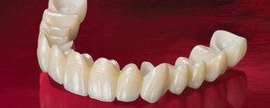 Безметалловая керамика на зубы