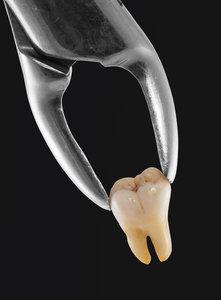 Причины, по которым удаление зуба является объективной необходимостью.