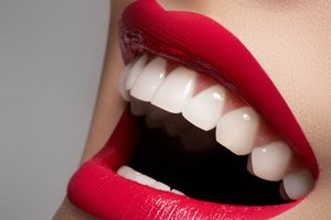 Зубная металлокерамика для ощущения полного комфорта