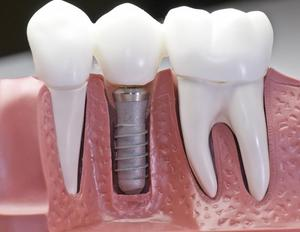 Зубные импланты в Череповце.