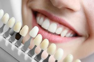Установка люминиров на зубы в Вологде