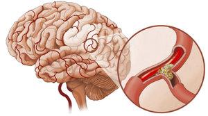 Лечение сосудов головы