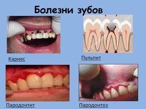 Болезни зубов у человека!!!