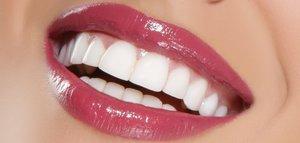 Как сделать голливудскую улыбку, описание методов!