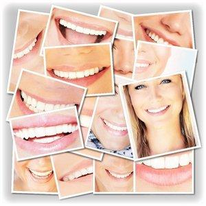 Безопасное экспресс-отбеливание зубов за 40 минут !!!!