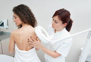 Консультация врача дерматолога в Вологде