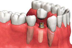 Поставить зубные импланты