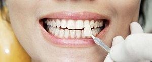 Виниры на зубы. Создайте безупречную улыбку!