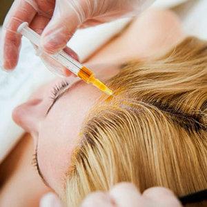 Мезотерапия волос и кожи головы