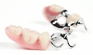 Бюгельные протезы зубов