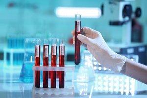 Сдать анализ крови на гепатит в Вологде