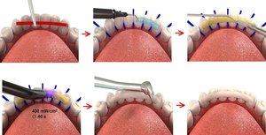 Процедура шинирования зубов. Онлайн-запись!