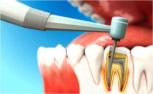Профессиональное удаление нерва зуба. Обращайтесь!