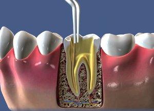 Лечение периодонтита зубов в стадии обострения