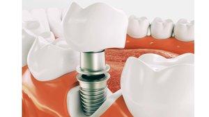 Установка имплантов зубов в Вологде