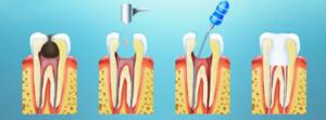 Удаление нерва зуба: в каких случаях это необходимо? И почему сегодня можно не бояться этой процедуры?