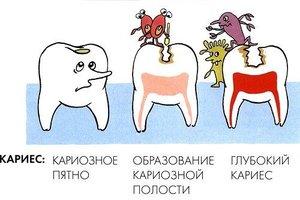 Санация полости рта или почему важно лечить зубы?