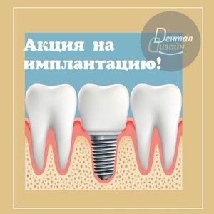 Акция на имплантацию зубов!
