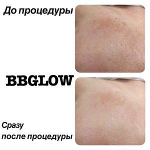 Эффект BB крема на год