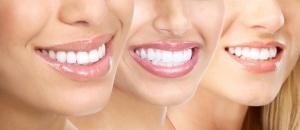 Стоматология Вторая Речка гигиена полости рта